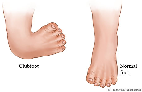 Club foot illustrated
